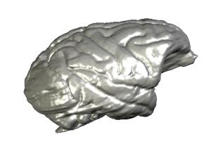 brain reconstruction STL