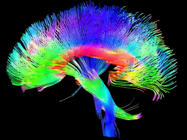 multicolored brain scan