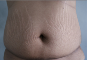 A belly with multiple stretch marks